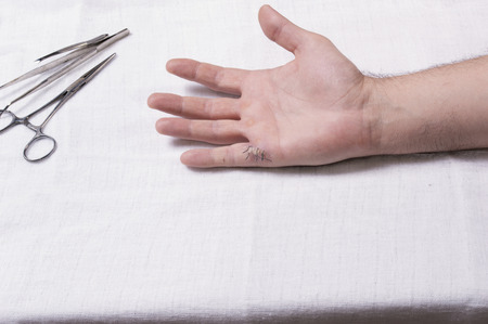 gauze: Wound with stitches on mans hand with medical equipment, on table covered with gauze, copy space