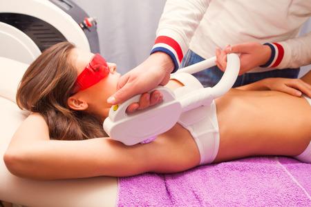 armpit: woman laser epilation armpit