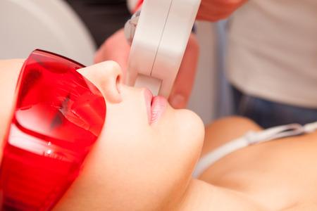 Frau Oberlippe Haarentfernung mit Laser