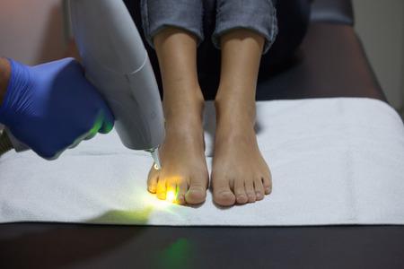 クローズ アップ クリニックでレーザー ネイル菌の治療