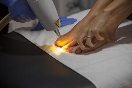laser  nail fungus treatment at clinic closeup