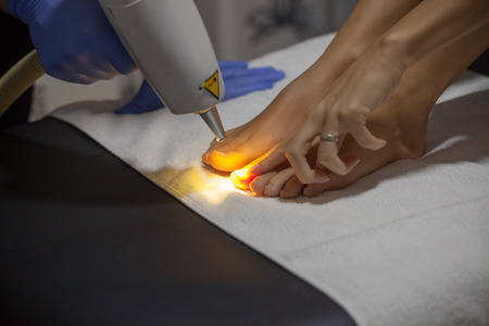 laser  nail fungus treatment at clinic closeup