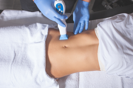 female beauty: woman body fractional treatment at medical spa center