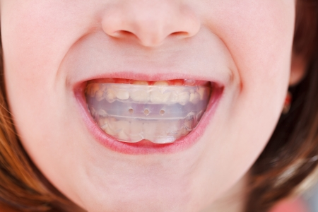 fix jaw: correction of children occlusion by pre-orthodontic trainer Stock Photo