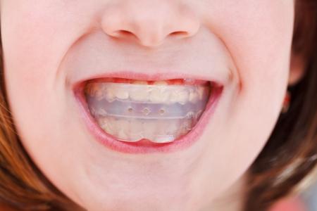 zatkanie: korekta zgryzu dzieci przez trenera pre-ortodontycznego