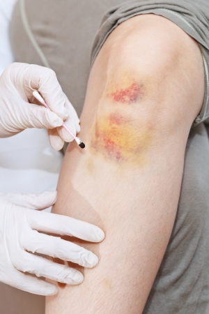 suffusion: iodine grid painting of knee bruise close up Stock Photo