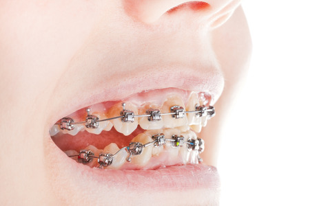 dental braces on teeth close up during orthodontic treatment photo