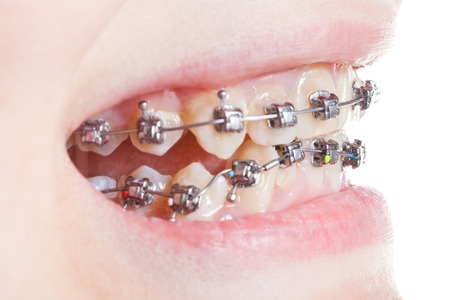 side view of dental brackets on teeth close up during orthodontic treatment photo