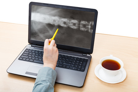 vertebrae view: medic analyzes X-ray picture of spine on laptop screen