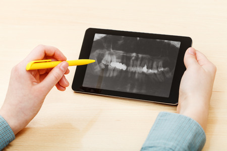 student analyzes X-ray picture of human jaws on screen on tablet pc photo