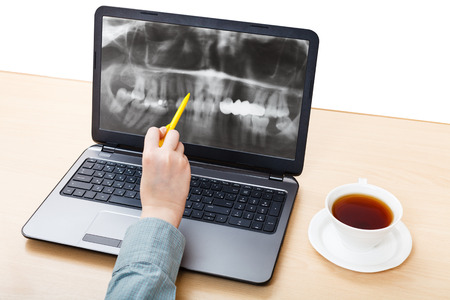 dentist analyzes X-ray picture of jaws on laptop screen photo