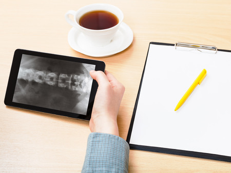 vertebrae view: medic analyzes X-ray picture of vertebral column on screen on tablet pc Stock Photo