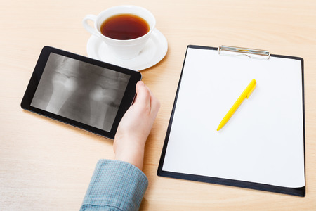 medic analyzes X-ray picture of two human knee-joints on screen on tablet pc photo