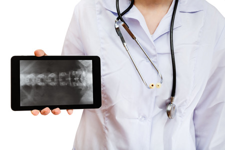spinal column: nurse holds tablet pc with X-ray picture of human spinal column on screen isolated on white background