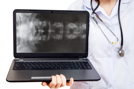 vertebrae view: nurse holds computer laptop with X-ray picture of human spinal column on screen isolated on white background
