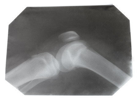 x ray equipment: X-ray picture of human knee joint isolated on white background