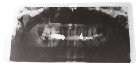 ray tracing: X-ray picture of human jaws with dental crown isolated on white background