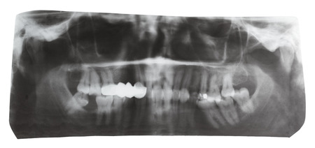 dental X-ray picture of human jaws isolated on white background photo