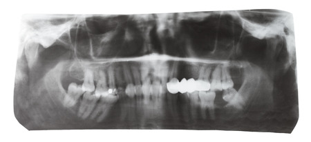 ray tracing: dental X-ray picture of human teeth isolated on white background Stock Photo