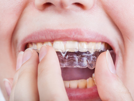 correction: young woman puts clear aligner for orthodontic correction of bite close up