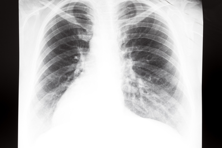 Front view of human thorax with lungs on X-ray image