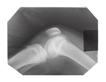 Film with X-ray image of human knee-joint with kneecap isolated on white