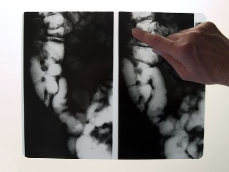 Doctors hand pointing at X-ray of colon Stock Photo - 370074