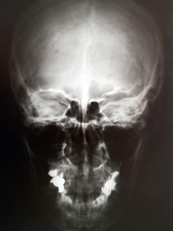 X-ray image of human skull