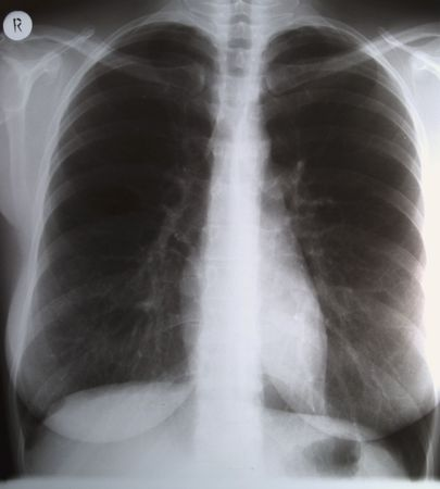 X-ray of lungs, no person Stock Photo