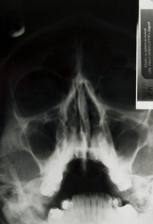 X-ray of skull Stock Photo