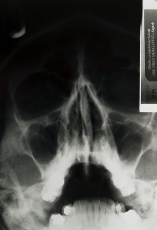 b w images: X-ray of skull Stock Photo