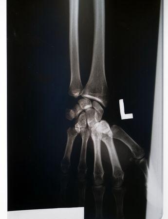 X-ray of wrist
