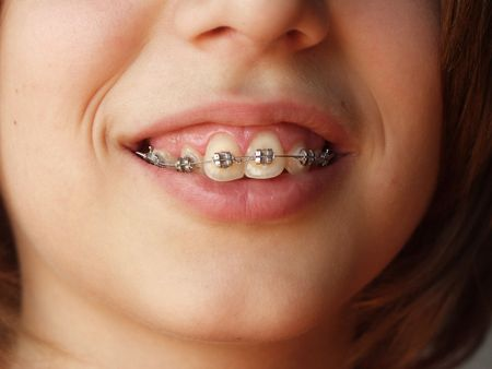crooked teeth: Teen smiling with braces on teeth