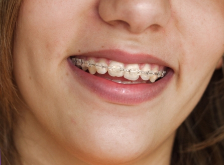 crooked teeth: Smile with braces on teeth