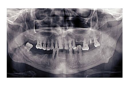 Panoramic dental x-ray of an elderly person. Bad teeth fell out. Snapshot of the pensioner's jaw. Orthopantomogram