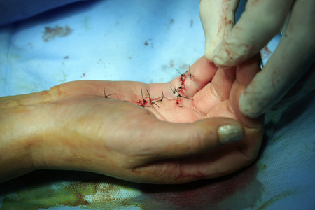 handbreadth: finished hand surgery with sutures of black threat