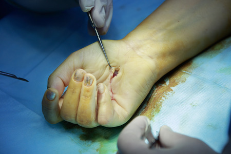 flesh surgery: orthopedic surgery on hand with surgical hook in open wound closeup