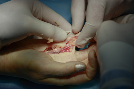 flesh surgery: surgery on hand ligaments closeup Stock Photo