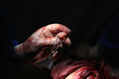 surgical removal: a piece of cartilage tumor in surgeons blood spotted hand with instrument Stock Photo