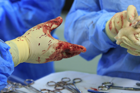 operation gown: surgeons hand close-up waiting for the instrument in bloody glove