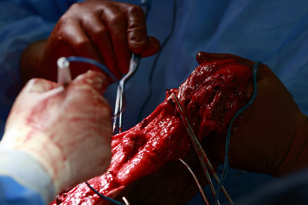 flesh surgery: detail of comlex surgical intervention with tensed flesh while surgeon removes tumor