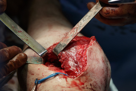 wound on the leg with muscles expanded by surgical tools durign the operation
