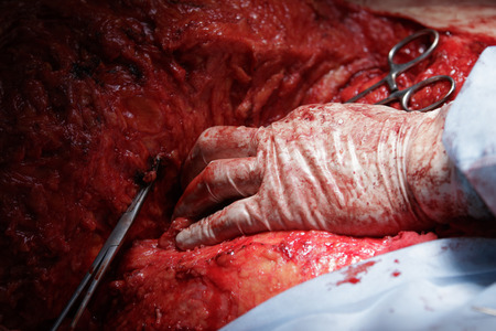 flesh surgery: surgeons hand in glove close-up lying on the flesh covered in blood