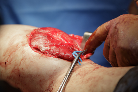 Leg surgery details with open wound, uncovered muscle and Kochers clamp holding wire that retaints nerve