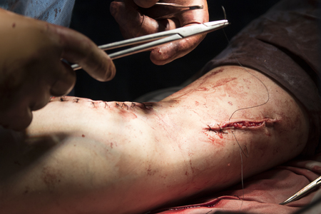 flesh surgery: Surgeon sews the wound on the leg after the surgery Stock Photo