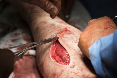 flesh surgery: Surgeon begins to sew the wound on the leg after the operation Stock Photo