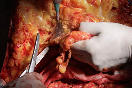 flesh surgery: surgeon cuts off a piece of fat tissue with surgical scissors during the operation