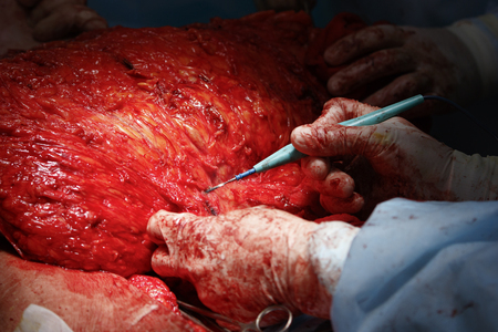 flesh surgery: surgeon uses coagulator in stomach surgery with extensive flesh area close-up Stock Photo