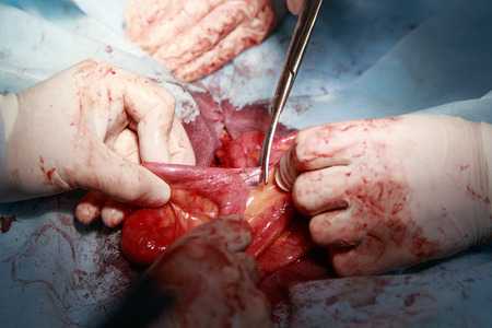 entrails stomach: surgeon slits the adhesions on the intestine with surgical scissors during the surgery CLOSE-UP