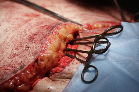 flesh surgery: two clamps sticks inside of an open wound with fat outside close-up